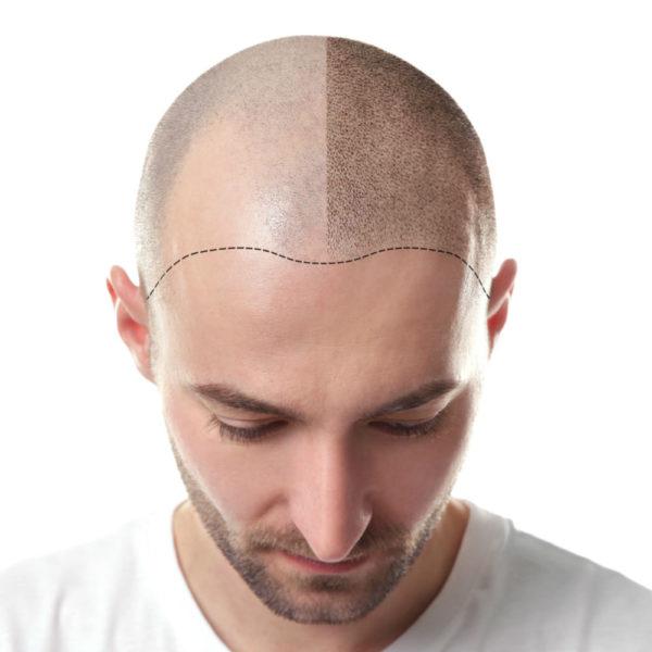 trapianto-capelli